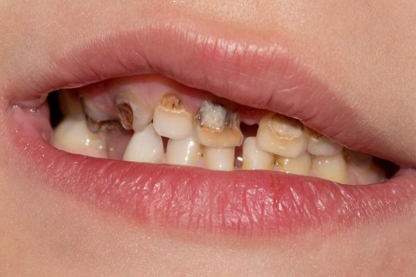 שיניים 3