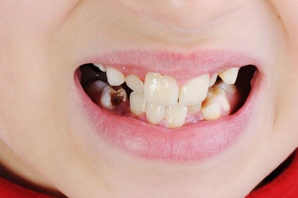 שיניים 2