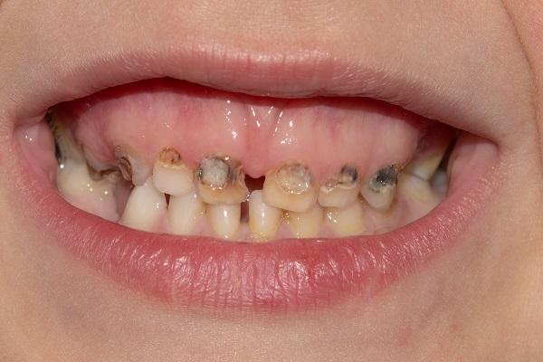 שיניים 4